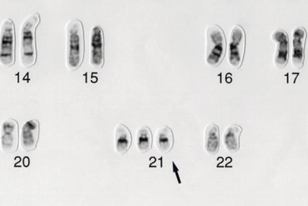 La trisomie 21 peut être généralement détectée très tôt pendant la grossesse